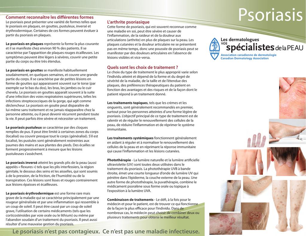 Psoriasis - Canadian Dermatology Association à Association De Formes